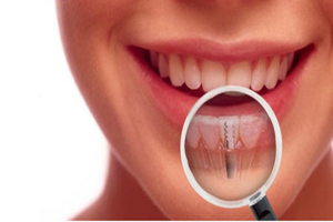Dental-ImplantsBarrieOntario